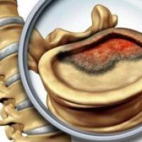 Как проявляется рак позвоночника
