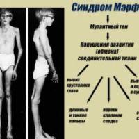 Какими симптомами проявляется синдром Марфана