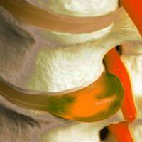 Выявление и лечение парамедианной грыжи