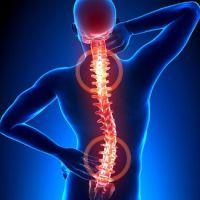 Вертеброгенная дорсопатия: причины, симптомы, лечение