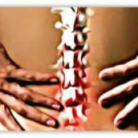 Стеноз позвоночника: причины, симптомы, диагностика, лечение