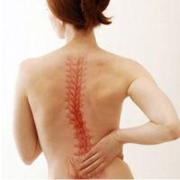 Кифосколиоз грудного отдела позвоночника: причины, симптомы, лечение
