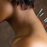 Иглоукалывание как терапия при остеохондрозе шейного отдела