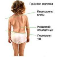 Физиологические изгибы позвоночника и их формирование