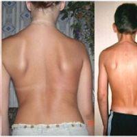 Лечение сколиоза от первой до третьей степени