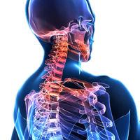 Дорсопатия: патологии шейного отдела позвоночника