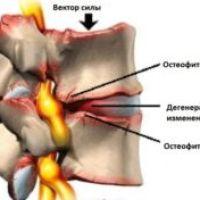 Как избавиться от остеофитов шейного отдела