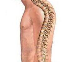 Что такое кифоз грудного отдела? Основные причины, симптомы и лечение.