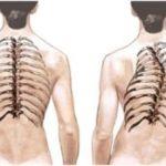 Лечение и профилактика болей в спине при сколиозе