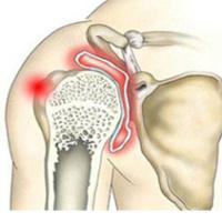 Симптомы артрита плечевого сустава и его лечение