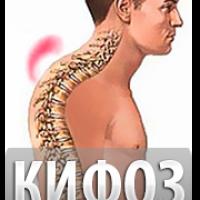Кифоз позвоночника — симптомы, последствия, виды.