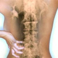 Лечение дорсопатии пояснично-крестцового отдела позвоночника