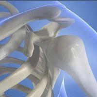 Симптомы и методы лечения остеопороза плечевого сустава