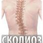 Симптомы и лечение сколиоза позвоночника