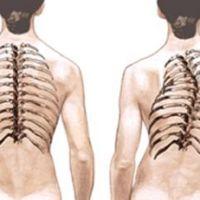 Симптомы и терапия идиопатического сколиоза