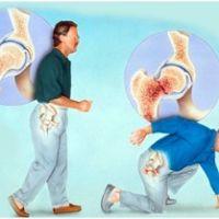 Остеопороз, его первые проявления и степени
