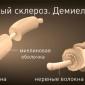 Причины рассеянного склероза шейного отдела позвоночника и его лечение