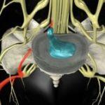 Дорзальная грыжа межпозвоночного диска: основные симптомы и подходы к лечению