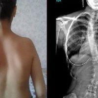 Лечение детского сколиоза: нюансы основных терапевтических методов, их эффективность на разных стадиях заболевания