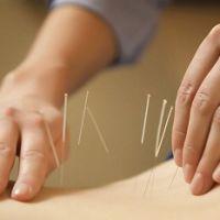 Показания и противопоказания к применению иглорефлексотерапии при грыжах позвоночника