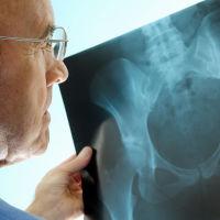 Остеоартрит – болезнь изношенных суставов