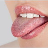 Причины жжения в языке при шейном остеохондрозе