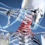 Невралгия шейного отдела: особенности течения заболевания и методики лечения