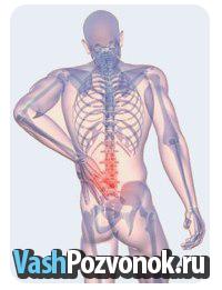 Стадии развития остеохондроза