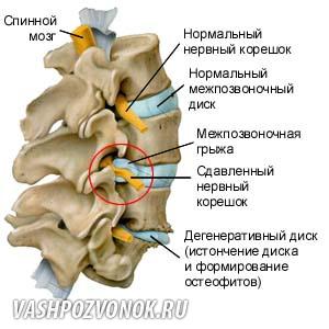 Боль в грудной клетке по центру отдающая в спину