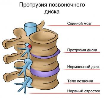 Иллюстрация протрузии дисков позвоночника
