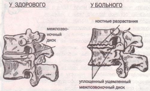 Причины развития хондроза шейного отдела позвоночника