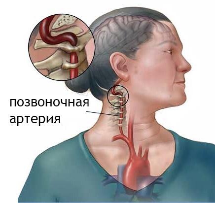 Дорсопатия: симптомы, диагностика заболевания