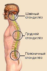 Спондилез позвоночника: симптомы и лечение