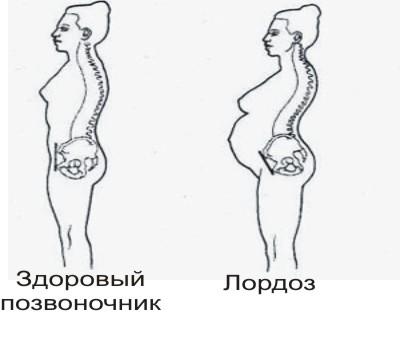 Абсолютный стеноз шейного позвоночного канала лечение