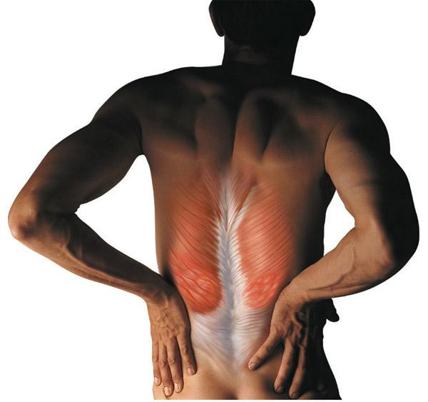 Симптомы метастаз в позвоночнике