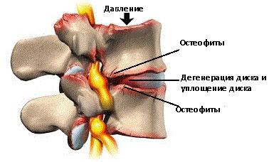 Симптомы спондилеза поясничного отдела позвоночника