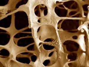 Остеопороз – что это