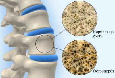 Кто имеет склонность к остеопорозу позвоночника