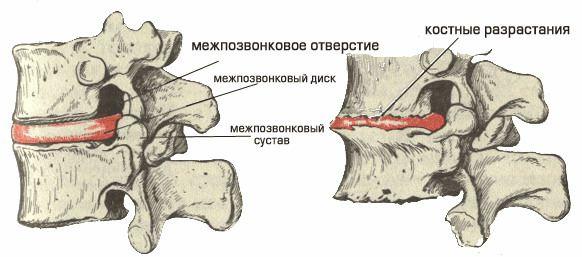 Причины остеофитов