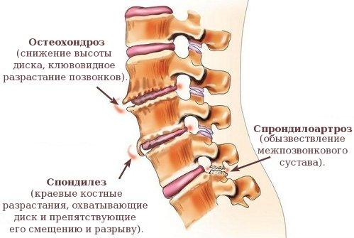 Причины возникновения спондилоартроза шейного отдела позвоночника