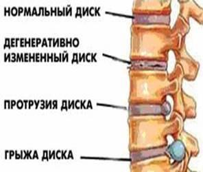 Симптомы выпячивания межпозвоночного диска