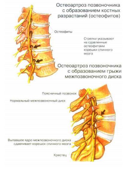 Причины остеохондроза позвоночника