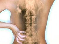Дорсопатия поясничного отдела позвоночника: причины, лечение