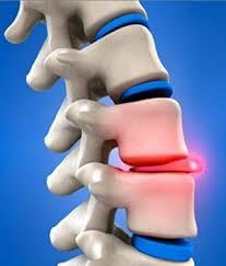 Боли в грудном отделе позвоночника причины