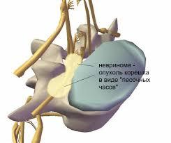 Причины невриномы позвоночника
