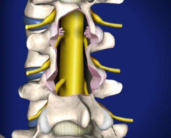 Симптомы поясничного стеноза