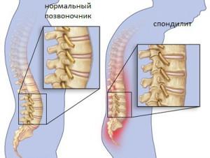 Туберкулезный спондилит