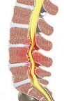 Стеноз канала позвоночника