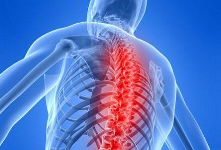 Проявления остеохондроза грудного отдела