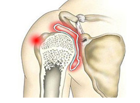 Симптомы при артрите плеча
